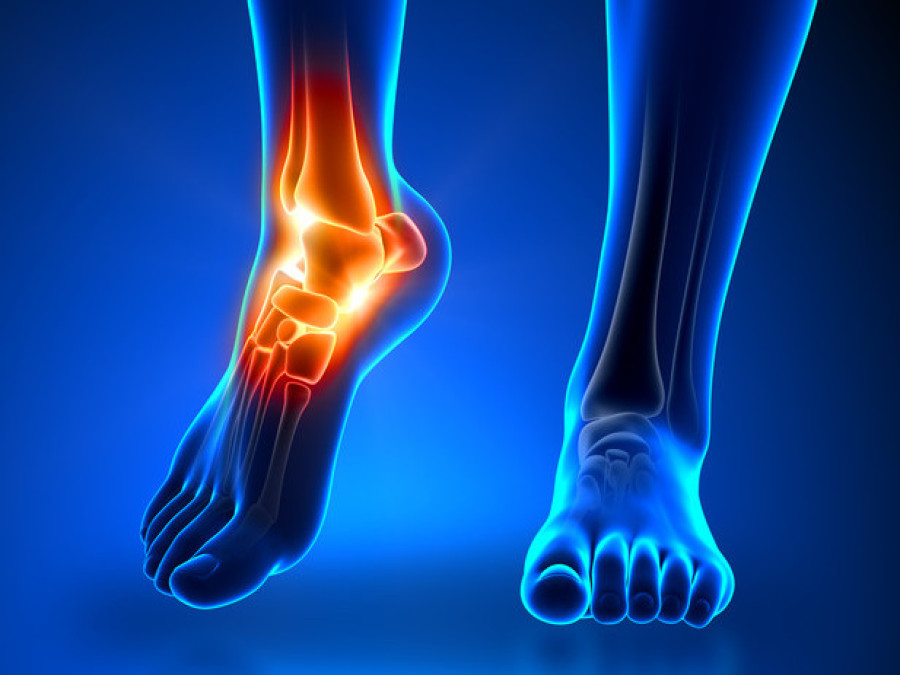 Chiropody Footcare Icluding Nail Cutting Corns Verruca And Hard Skin So When Making Your Appointment Inform The Receptionist Of Problem