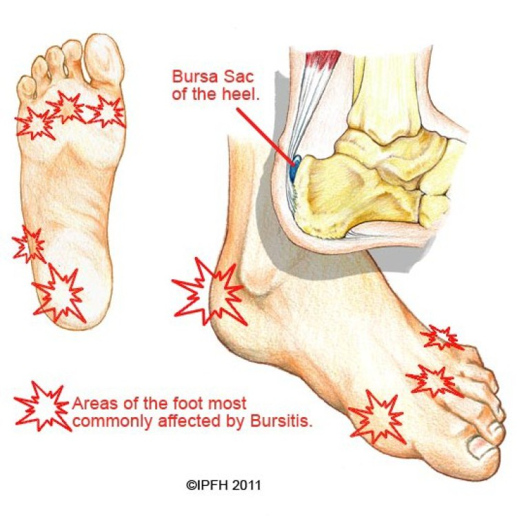 Fancy Heel Bursitis Anatomy Photos - Anatomy Ideas - yunoki.info