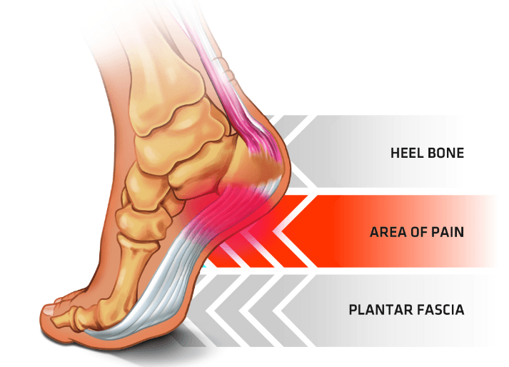 ef0c9a9cda Chislehurst Podiatry Practice - Heel pain- Plantar fasciitis